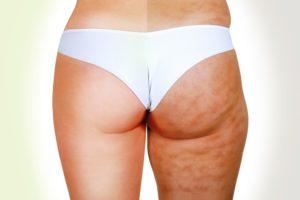 Normale VS Cellulite