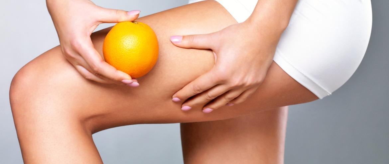 Gli stadi della cellulite: quali sono e come rimediare