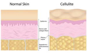L'origine della cellulite