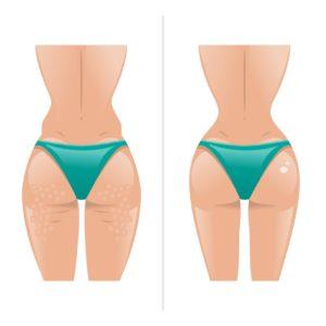 Cellulite a confronto