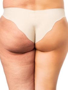 Cellulite su cosce e glutei