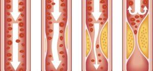 Come tenere a bada il colesterolo