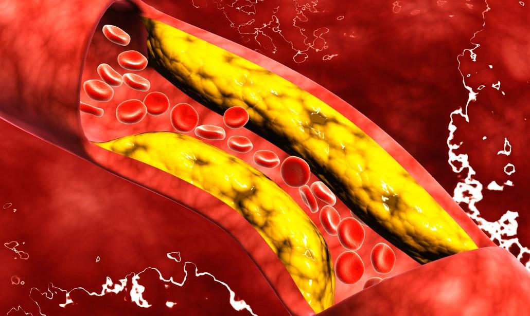 Aumento di colesterolo
