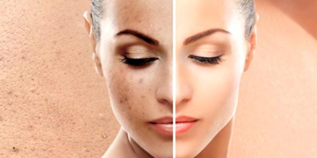 La pelle è lo specchio del nostro organismo
